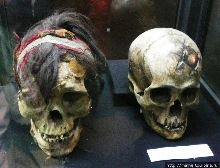 В музее золота.Лима. 2,000 лет назад при трансплантации черепа были вставлены золотые пластинки.